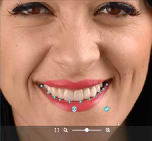 gülüş tasarımı smile design hollywood smile