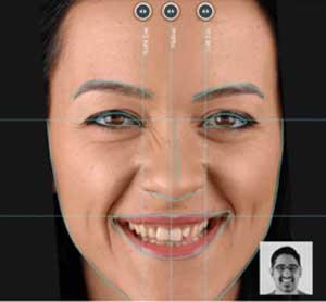 Gülüş Estetiği Gülüş Tasarımı
