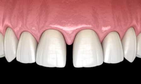 Ayrık Dişler Nasıl Düzeltilir