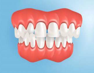 Diastema, Ayrık Diş Tedavisi