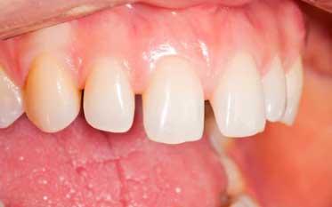 Ön dişlerde açıklık