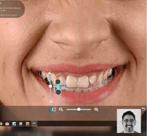 Estetik Gülüş Tasarımı Dijital Diş Hekimliği